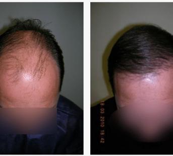 imagen de caso real microinjerto de pelo