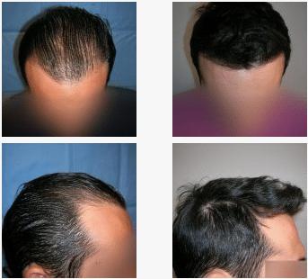 imagen de caso real microinjerto de pelo 7