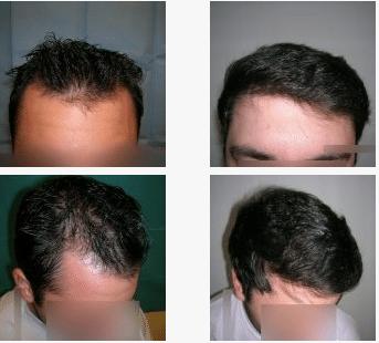 imagen de caso real microinjerto de pelo 6