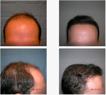 imagen de caso real microinjerto de pelo 4