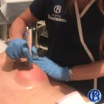 imagen de como eliminar estrias del pecho clinica renacimiento madrid