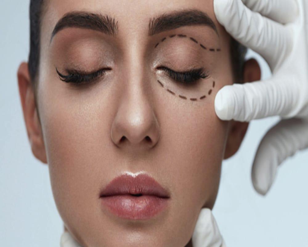 imagen de Blefaroplastia cirugia estetica facial clinica renacimiento