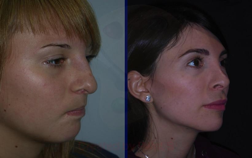 imagen de Caso real bolas de bichat clinica renacimiento en madrid doctor joaquin garcia aparicio