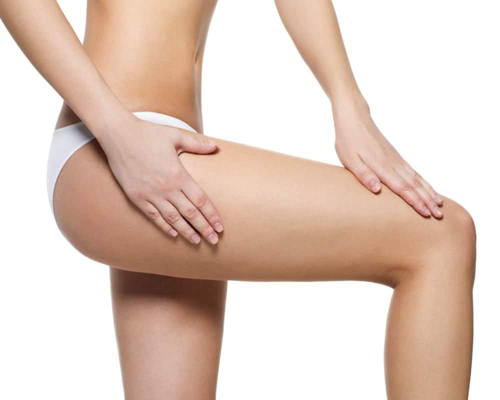 imagen de Lifting de Muslos renacimiento madrid y marbella estetica corporal