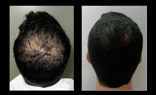 imagen de Medicina Regenerativa Alopecia casos reales clinica renacimiento madrid