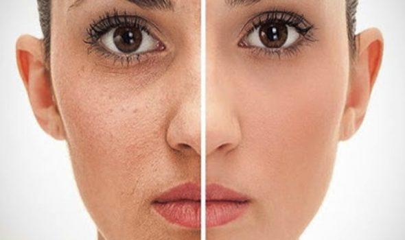 imagen de Rejuvenecimiento con Láser C02 clinica renacimiento madrid y marbella estetica facial