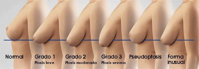 imagen de Grados de Ptosis mamarias elevacion de senos