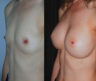 imagen de aumento de senos renacimiento madrid