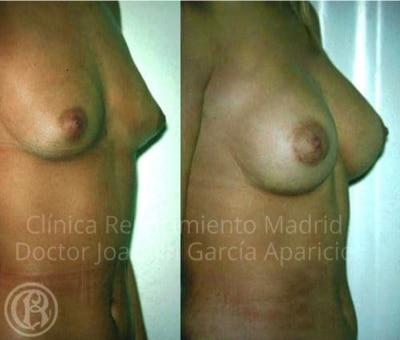 imagen de caso antes y despues real aumento de seno clinica renacimiento madrid 5