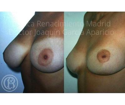 imagen de caso real antes y despues reduccion de senos clinica renacimiento madrid 2