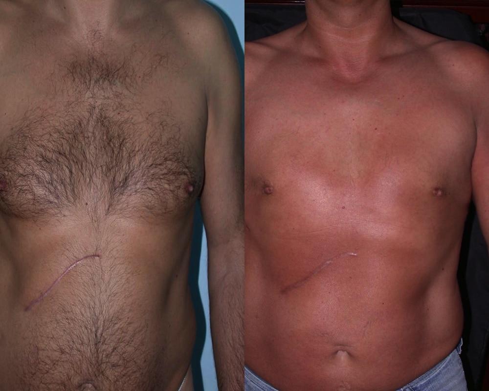 imagen de caso real de ginecomastia clinica renacimiento madrid marbella