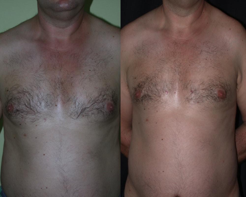 imagen de caso real tres de ginecomastia clinica renacimiento madrid marbella