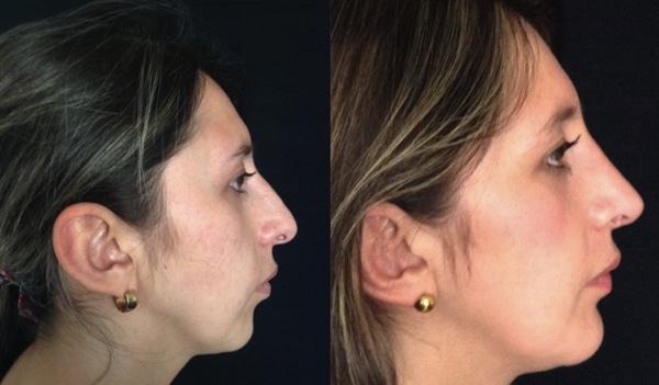 imagen de casos real mentoplastia clinica renacimiento madrid doctor joaquin garcia aparicio