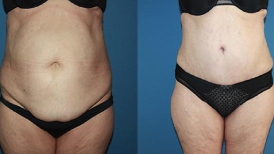 imagen de casos reales abdominoplastia clinica renacimiento madrid