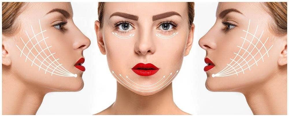 imagen de casos reales flacidez facial clinica renacimiento madrid