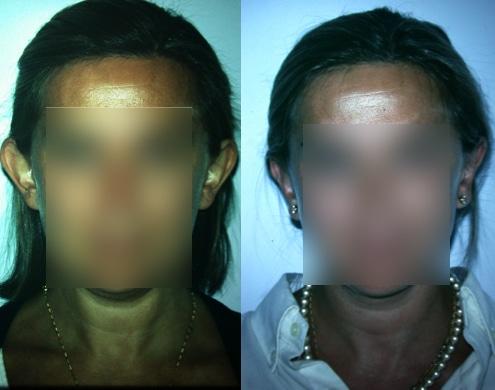 imagen de cirugia de OREJA otoplastia antes y despues clinica renacimiento madrid 1