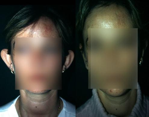 imagen de cirugia de OREJA otoplastia antes y despues clinica renacimiento madrid 2