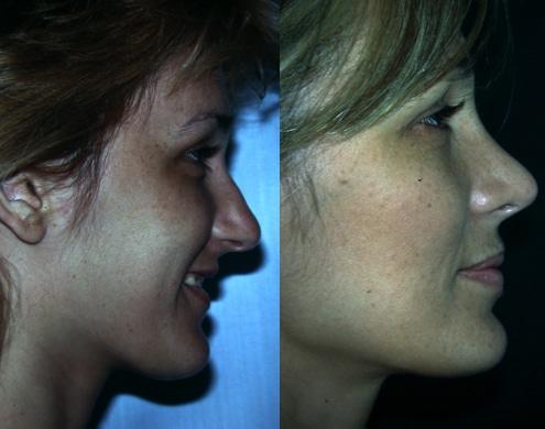 imagen de cirugia de nariz rinoplastia antes y despues clinica renacimiento madrid 6