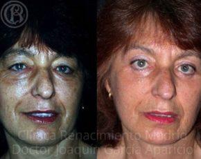 imagen de cirugia de parpados blefaroplastia antes y despues clinica renacimiento madrid