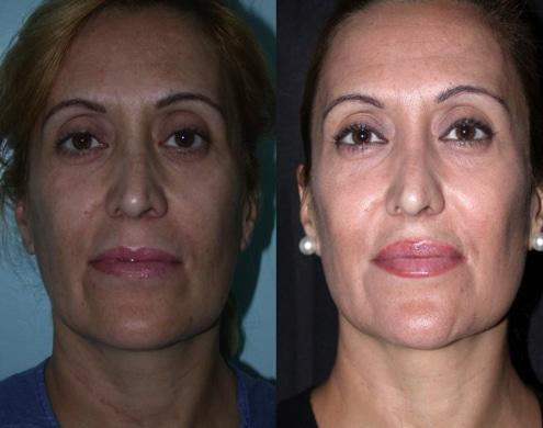 imagen de cirugia de pomulos malaroplastia antes y despues clinica renacimiento madrid
