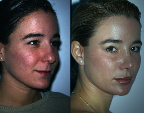 imagen de cirugia de pomulos malaroplastia antes y despues clinica renacimiento madrid 2