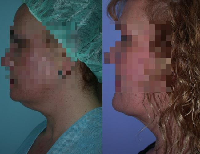 imagen de clinica renacimiento madrid Lipoescultura de papada caso real antes y despues 12