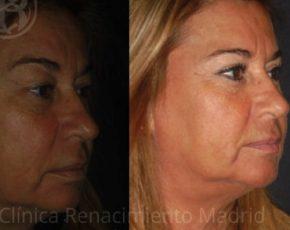 imagen de clinica renacimiento madrid blefaroplastia caso real antes y despues 12