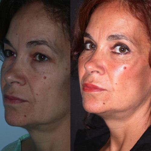 imagen de clinica renacimiento madrid lifting facial caso real antes y despues 1