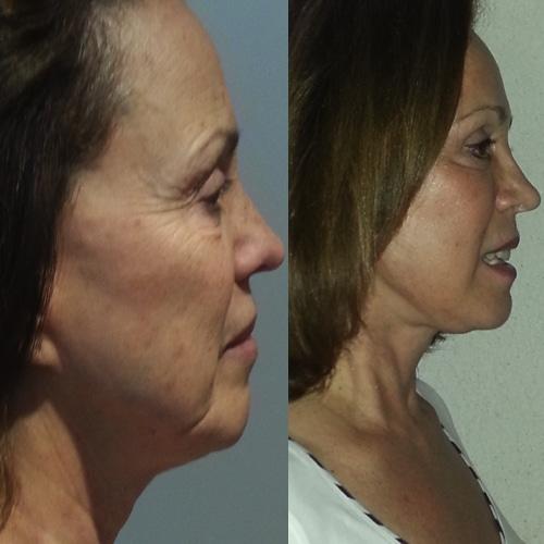 imagen de clinica renacimiento madrid lifting facial caso real antes y despues 10