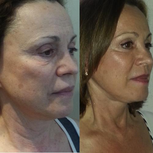 imagen de clinica renacimiento madrid lifting facial caso real antes y despues 11