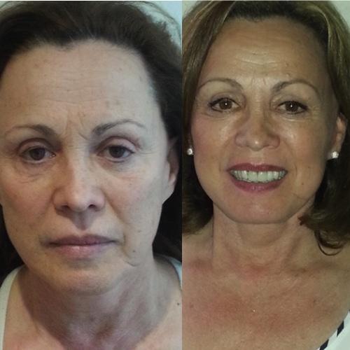 imagen de clinica renacimiento madrid lifting facial caso real antes y despues 12