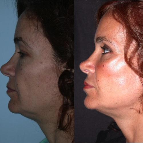 imagen de clinica renacimiento madrid lifting facial caso real antes y despues 2