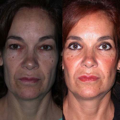 imagen de clinica renacimiento madrid lifting facial caso real antes y despues 3