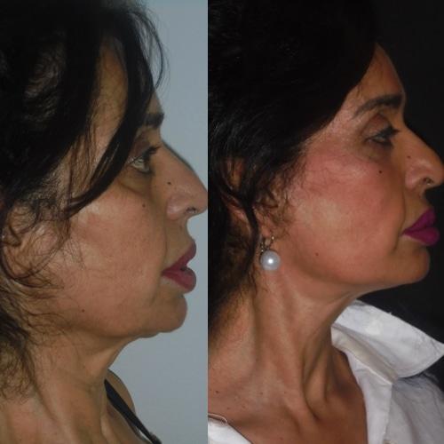 imagen de clinica renacimiento madrid lifting facial caso real antes y despues 7