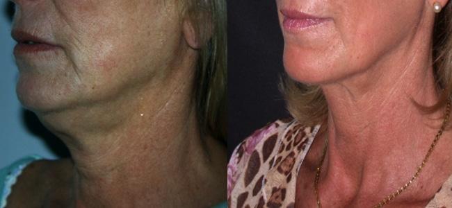 imagen de clinica renacimiento madrid rejuvenecimiento de cuello caso real antes y despues 2