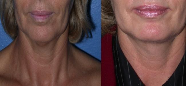 imagen de clinica renacimiento madrid rejuvenecimiento de cuello caso real antes y despues