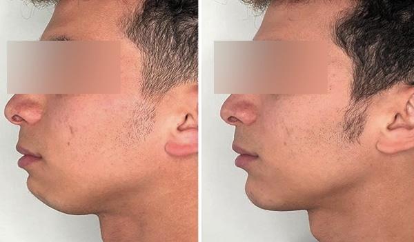 imagen de doble menton mentoplastia casos reales clinica renacimiento madrid menton