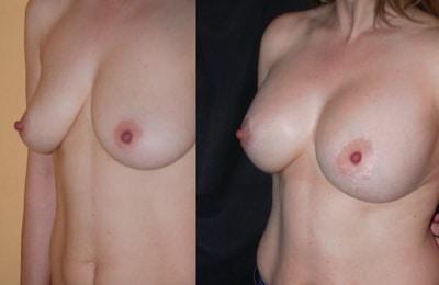 imagen de elevacion de senos renacimiento madrid 2