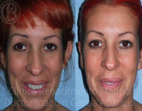 imagen de orejas otoplastia antes y despues clinica renacimiento madrid