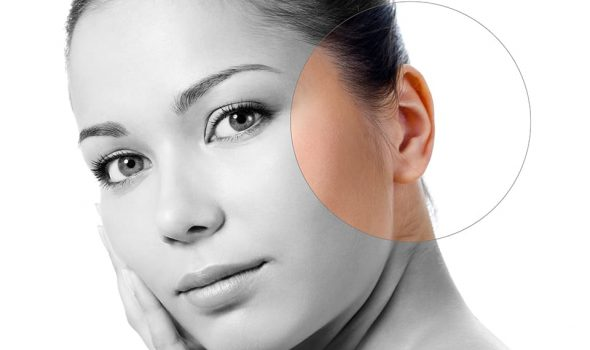 imagen de otoplastia o cirugia de oreja en clinica renacimiento madrid y marbella