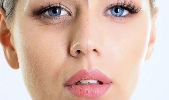 imagen de plasma gel renacimiento madrid y marbella estetica facial