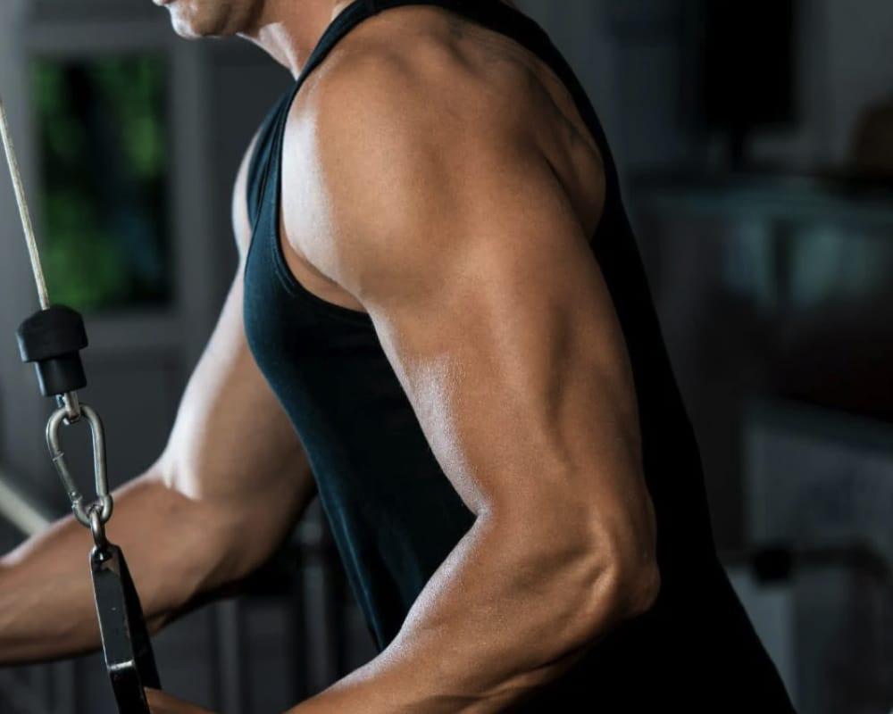 imagen de protesis de triceps renacimiento madrid y marbella estetica corporal