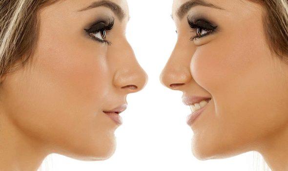 imagen de rinoplastia cirugia de nariz clinica renacimiento madrid y marbella