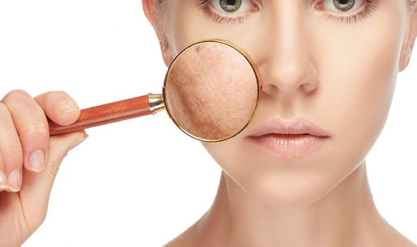 imagen de tratamiento de manchas clinica renacimiento madrid y marbella estetica facial