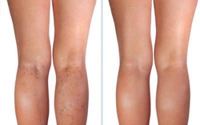 imagen de varices esteticas casos reales clinica renacimiento madrid