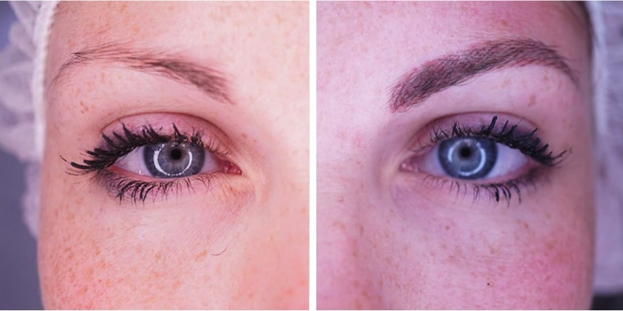 imagen de caso real micropigmentacion de cejas clinica renacimiento madrid