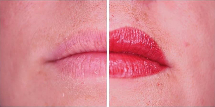 imagen de caso real micropigmentacion de labios clinica renacimiento madrid